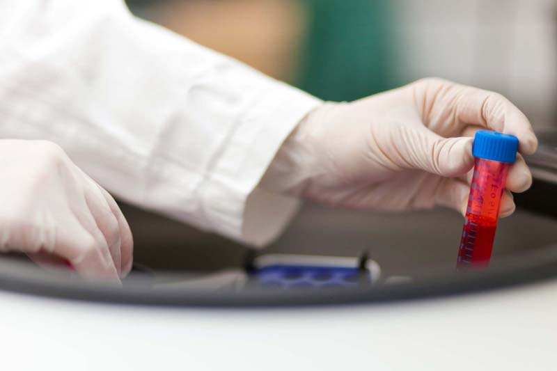 Frequently Asked Questions About Hematology Lab Work