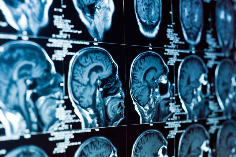 Signs, Symptoms and Treatment of Brain Cancer