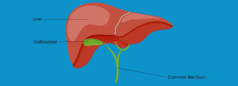 What to Know About Bile Duct Cancer